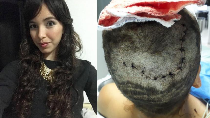 Esto es lo que Kenede Vega Garizao le dijo a su hermana mayor momento después de despertar de la cirugía que le realizaron por las profundas heridas en la cabeza con un cuchillo