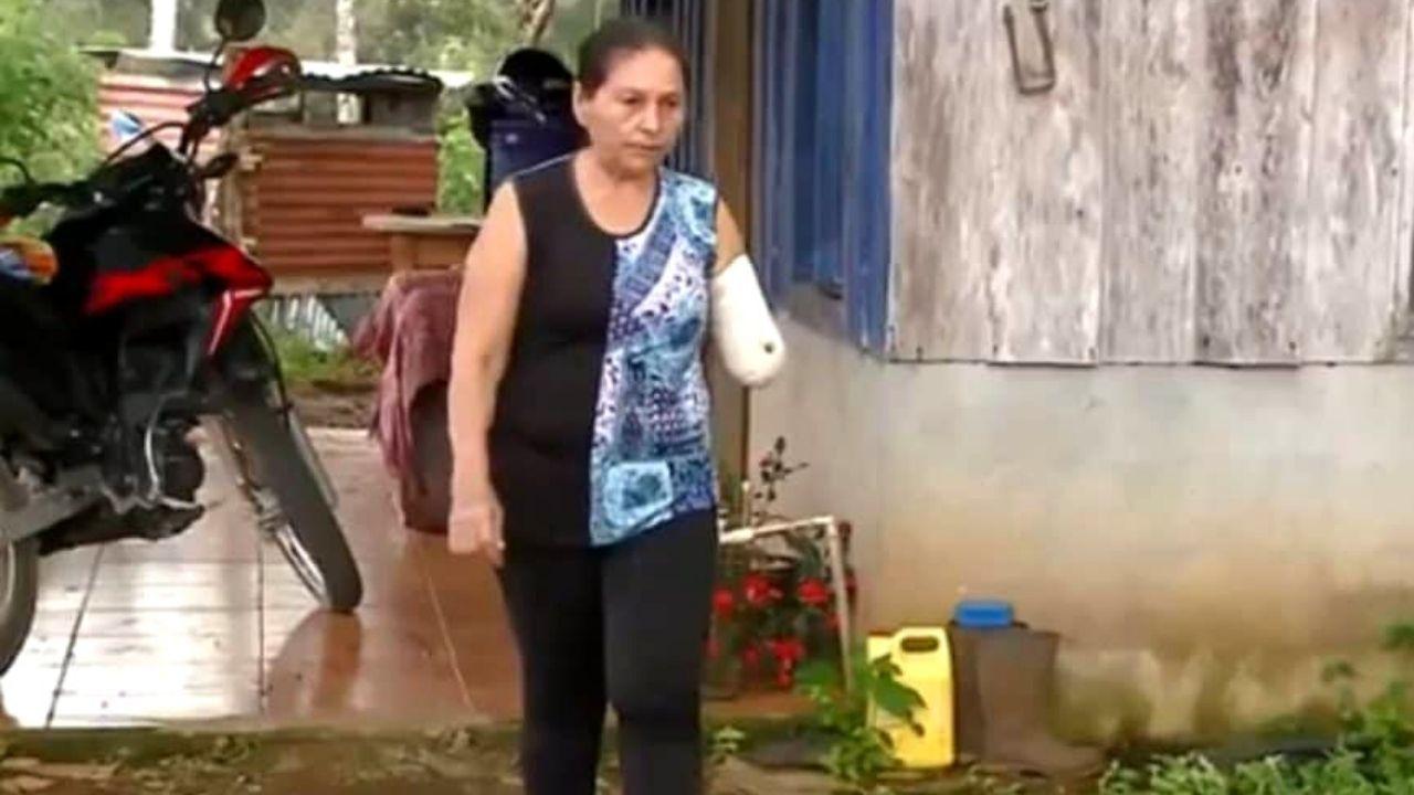 La madre del victimario quien cuenta con 60 años edad recibió herida con machete en la localidad de La Cruz de Guanacaste, en Costa Rica. La víctima fue herida de gravedad y perdió un brazo tras el ataque de su hijo con un afilado cuchillo. El hecho se produjo tras una fuerte discusión con su padrastro.
